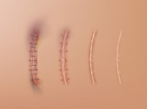 Surgical Staples Allegedly Causing More Harm Than Good